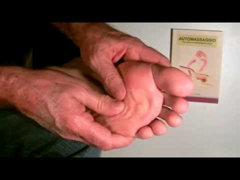 Deformazione di varusny di piede a una fotografia neonata