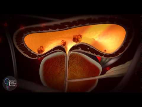 Ηλεκτρικές συσκευές για τη θεραπεία της προστατίτιδας