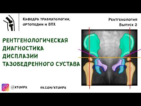 Рентгенологическая диагностика дисплазии тазобедренного сустава | Травматология и ортопедия