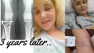 Car Accident/Tibia Surgery: 3 years later | LadyLuckTutorials