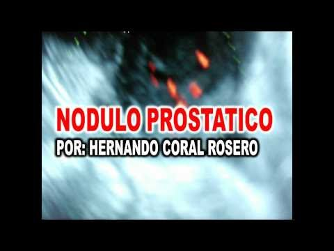 Intonaco urologica dal video prostatite