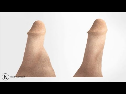 Ist es möglich, einen Einlauf mit Prostatitis zu setzen