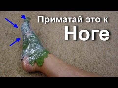 Gribok in Form von den Blasen auf den Beinen
