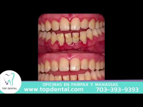 ¿Sientes molestías en las encías? ¡Podría ser una enfermedad periodontal! | Top Dental
