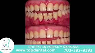 ¿Sientes molestias en las encías? ¡Podría ser una enfermedad periodontal! | Top Dental