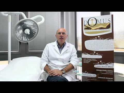 Terapia laser della persona a un couperosis