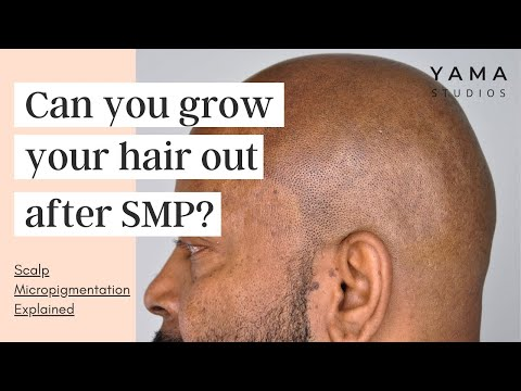 Can You Grow Your Hair Out After Scalp Micropigmentation? SMP Explained