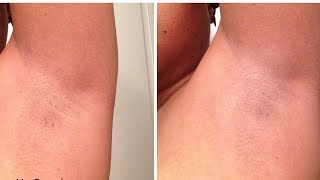 How to cure armpit rash naturally