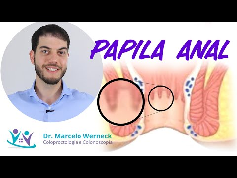 Paraziți la om simptomele stomacului