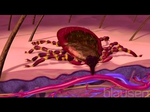 Video Lyme Disease Animation