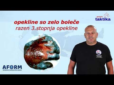 Epistaksa s hipertenzijom