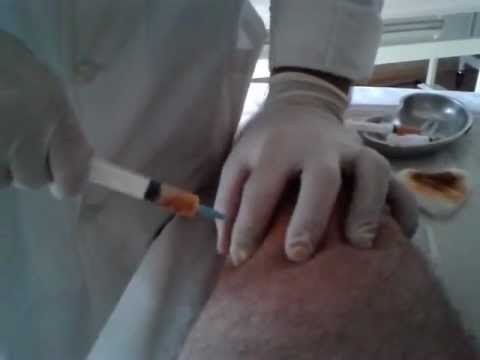 Video chiropratica osteocondrosi cervicale