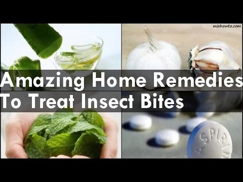 Video Home Remedies To Treat Insect Bites