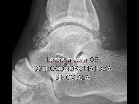 Dureri nervoase la nivelul piciorului în articulația șoldului