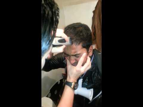 Eczema allatto di trattamento di sintomi di fotografia di adulti