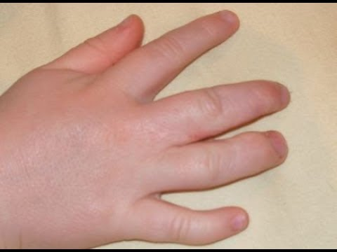 How To Reduce Swollen Fingers During Pregnancy | How To Treat Swollen Fingers At Home Mp3