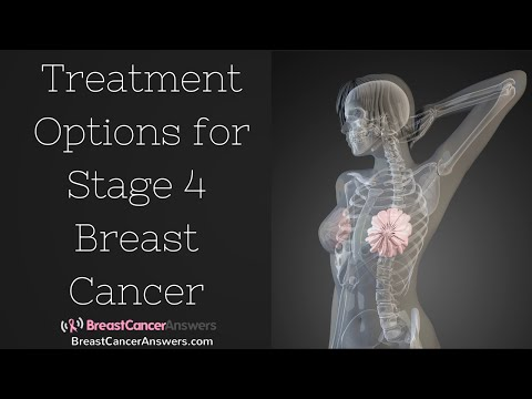 Video What Are the Treatment Options for Stage 4 Breast Cancer?