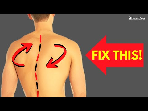 The Best Exercises For a Twisted Back