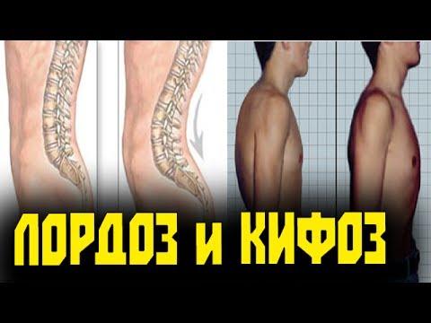 Коды мкб 10 сколиоз грудного отдела
