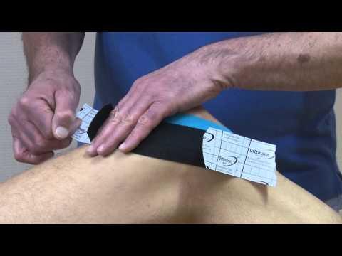Ob es möglich ist Akupunktur für herniated Halswirbelsäule zu tun