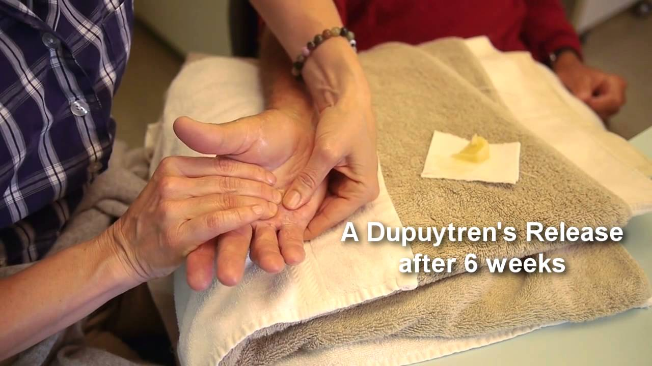 Medical: Hands of San Francisco