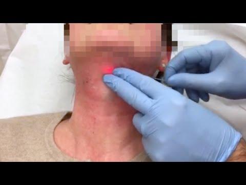 Il bruciato in un dolore del collo di bocca