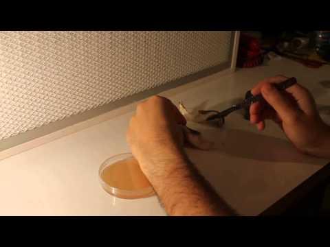 Il trattamento di unghia coltivato dal laser larea costiera