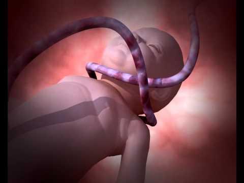 La branche de la chirurgie vasculeuse à tcherkassakh