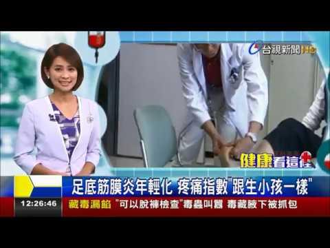 足底筋膜炎年輕化疼痛指數跟生小孩一樣