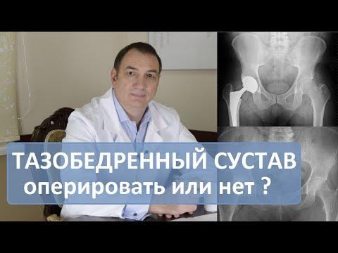 Лечение при остеоартрозе коленного сустава