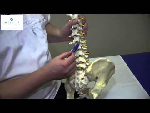 Die verbreitete Osteochondrose der Wirbelsäule die Verschärfung