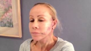 Laura's Facelift Journey: Part 3