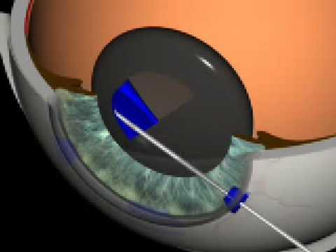 Animacja przedstawiająca operacje zaćmy w 3D