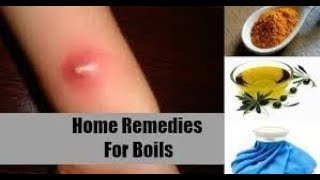 How to get rid of boils on the buttocks | boil home remedy boil treatment home remedies