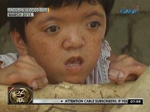 Paa halamang-singaw ay ang pinakamahusay na gamot