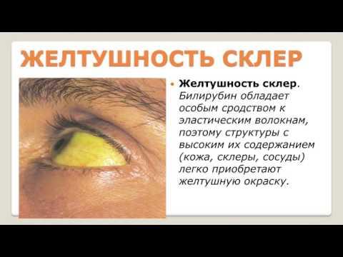 Дифференциальная диагностика острого гепатита в