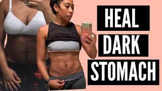 HOW TO HEAL DARK STOMACH POSTPARTUM   GET RID OF DARK BELLY AFTER BABY