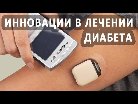Инновационные технологии в лечении сахарного диабета
