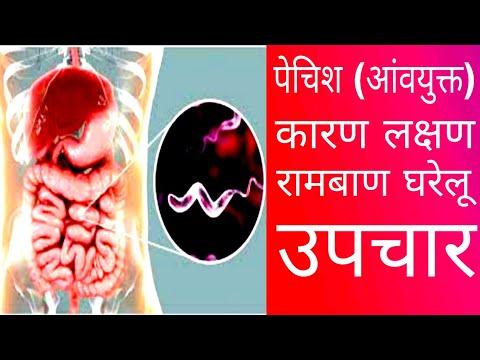 A trichocephalosis egy betegség. Trichocephalosis tünetei tünetek trihotsefaleze