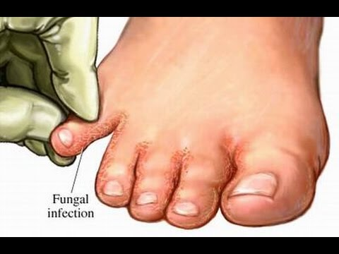 Onychomycosis nail treatment