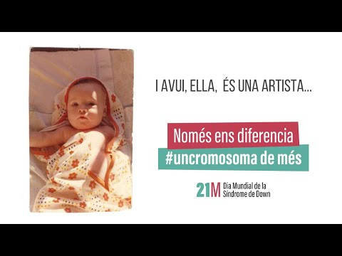 Ver vídeoNomés ens diferencia #uncromosoma de més. Odile.