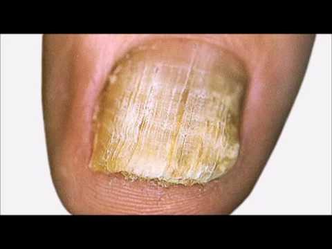 Le microorganisme végétal des ongles de la raison les symptômes le traitement