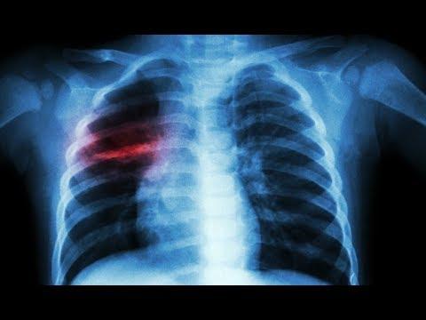 Zapalenie płuc na tle zakrzepicy