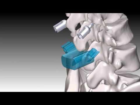 Esercizio di ginocchio instabilità articolare
