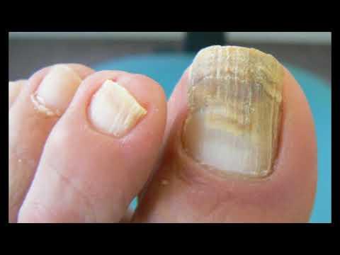 El hongo de las uñas del peróxido