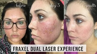 FRAXEL DUAL LASER TREATMENT FOR ACNE SCARS | DAY BY DAY RESULTS | KAILYN CASH