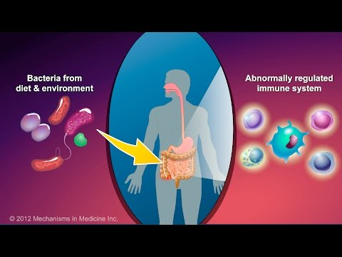 Video What is Crohn's Disease?