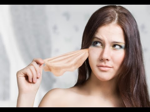 How to Treat Pimples Under the Skin - Cystic Acne Treament