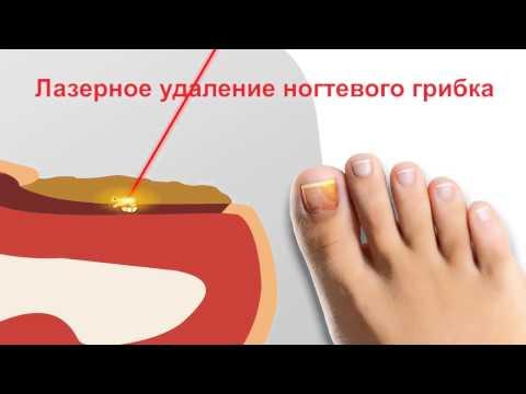 Die Präparate von gribka auf den Nägeln der Beine die Volksmittel