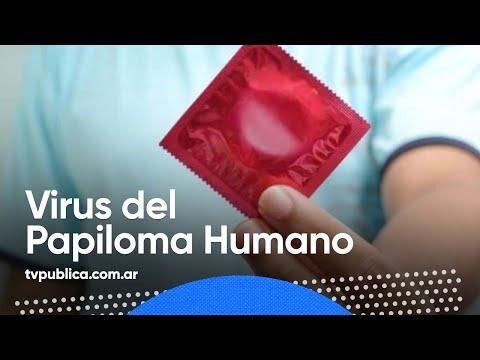 Soluție pentru arderea verucilor genitale